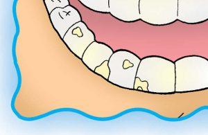 Iiih... Kuman-Kuman Banyak Menempel di Karang Gigi